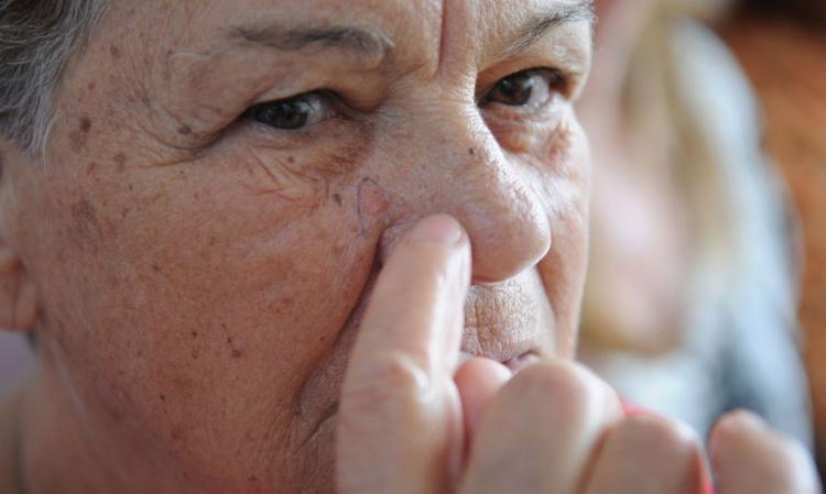 Pedidos de biópsia caíram em todos os estados, com exceção de Sergipe | Foto: Fábio Rodrigues Pozzebom | Agência Brasil - Foto: Fábio Rodrigues Pozzebom | Agência Brasil