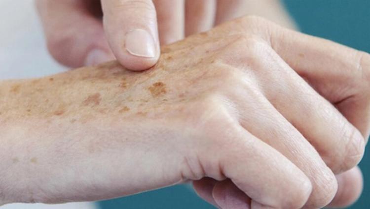 Pessoas com idade de 44 a 80 anos foram as que mais deixaram de fazer as avaliações dermatológicas na pandemia | Foto: Divulgação - Foto: Divulgação