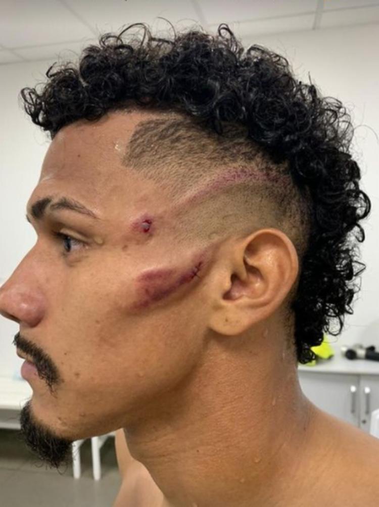Sobral mostrou cicatrizes após a partida   Foto: Reprodução   Redes Sociais - Foto: Reprodução   Redes Sociais