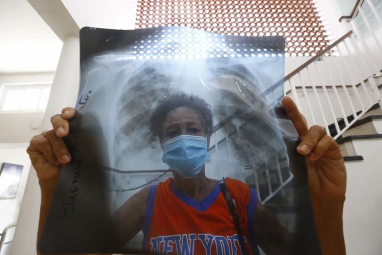 Cuidados de prevenção ao vírus também são importantes para controlar a tuberculose | Rafael Martins | Ag. A TARDE - Foto: Rafael Martins | Ag. A TARDE