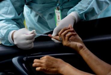 Brasil registra 183 mortes por Covid-19 e 21,6 milhões de casos em 24h | Agência Brasil