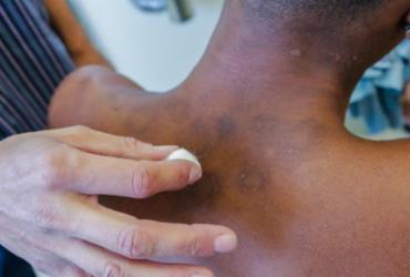 Brasil tem quase 30 mil novos casos de hanseníase por ano |