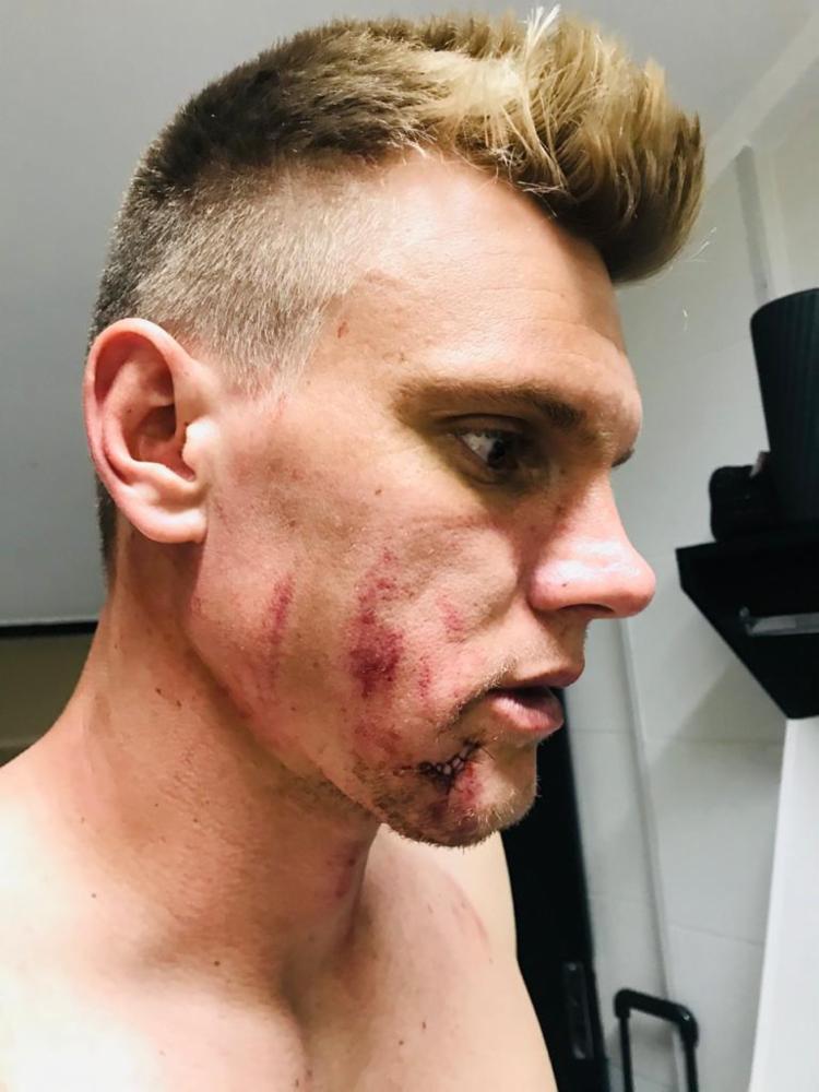 Goleiro sofreu corte no rosto após choque | Foto: Divulgação | E.C.Bahia - Foto: Divulgação | E.C.Bahia