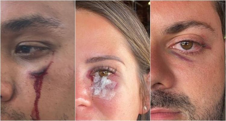 Hóspedes foram agredidos com socos e tiveram que ser atendidos em uma Unidade de Pronto Atendimento (UPA) | Foto: Arquivo Pessoal