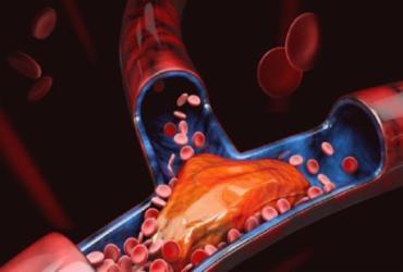 Cientistas sugerem que Covid-19 seja listada como febre viral trombótica