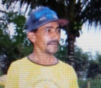 Agricultor teve 90% do corpo queimado   Foto: Arquivo pessoal