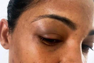 Técnica de enfermagem denuncia agressão de motorista de aplicativo em Feira de Santana