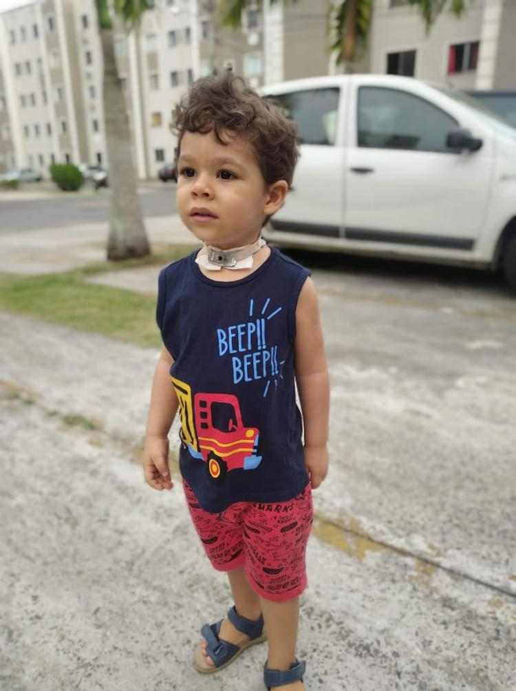 Miguel Enzo foi submetido a traqueostomia para respirar melhor | Foto: Acervo Pessoal - Foto: Acervo Pessoal