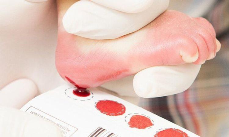 Legislação amplia número de doenças detectada pelo exame I Foto: Ascom I PMI - Foto: Ascom I PMI