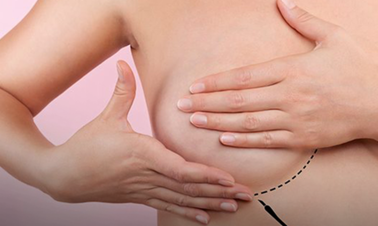 O país deve ter cerca de 66 mil novos casos de câncer de mama por ano entre 2020 e 2022. - Foto: Divulgação | Sociedade Brasileira de Mastologia