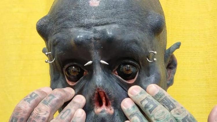 'Caveira' removeu grande parte do nariz | Foto: Reprodução | Arquivo Pessoal - Foto: Reprodução | Arquivo Pessoal