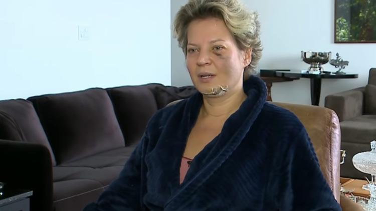 Joice Hasselmann contou ter acordado no chão de sua casa ensanguentada e com dois dentes quebrado - Foto: Reprodução