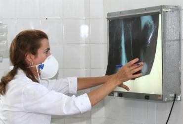 EUA aprova medicamento japonês contra o câncer de pulmão | Divulgação | Agecom Bahia