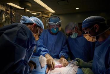 Rim de porco geneticamente modificado é transplantado em humano pela primeira vez | Joe Carrotta | AFP